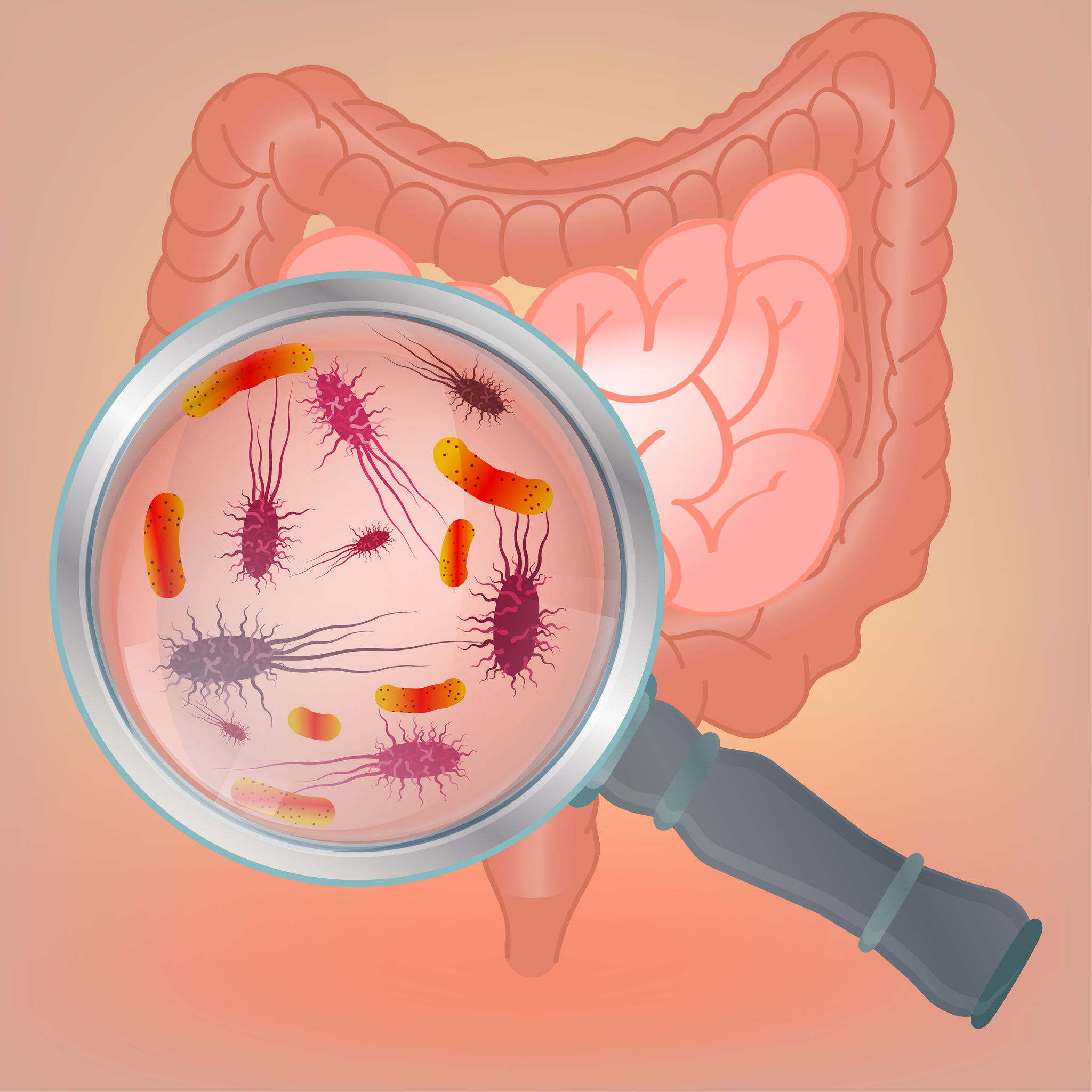probiotics for acid reflux | Probiotic America