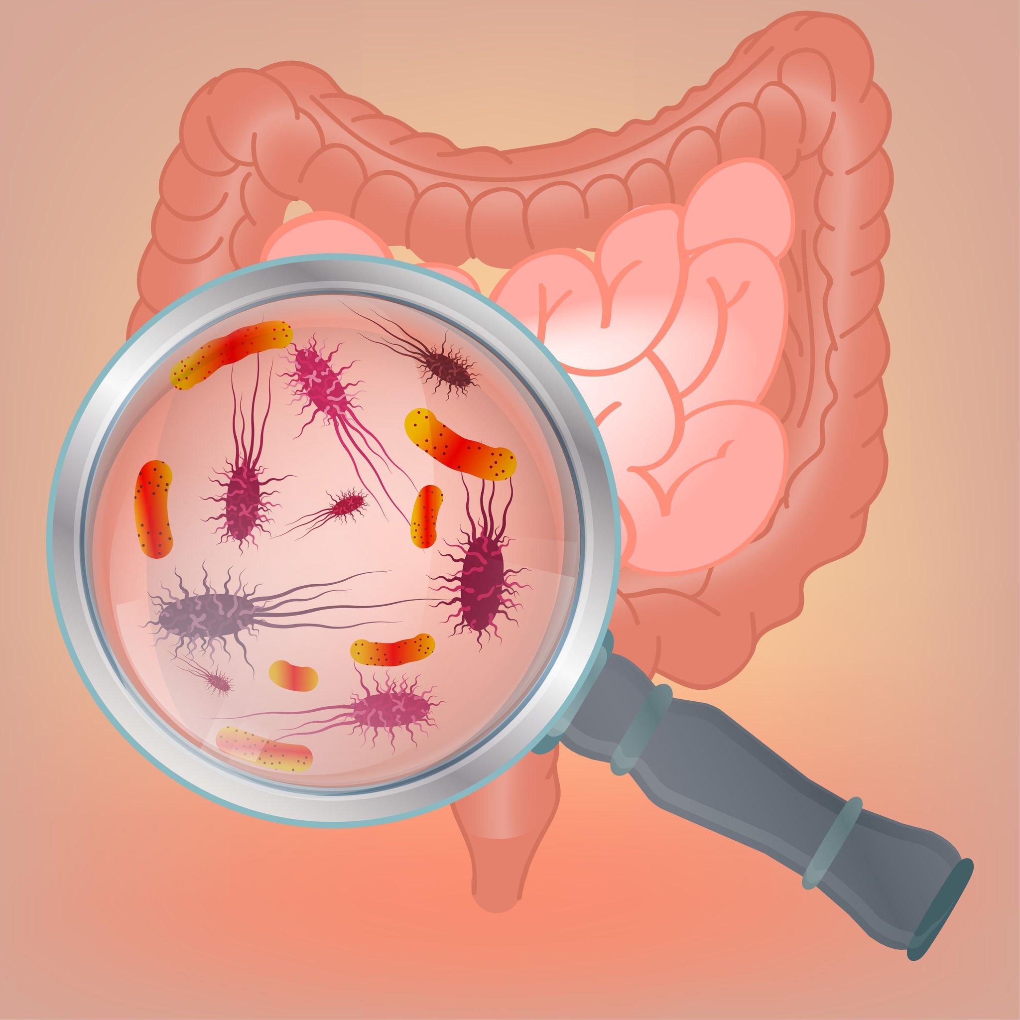 probiotics for acid reflux | Probiotic America